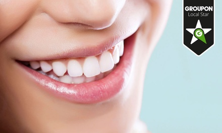 Clínicas Viver — Marquês de Pombal: 1 ou 2 limpezas dentárias com eliminação de manchas e polimento desde 14,90€