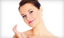One or Two Microdermabrasion Sessions at Spa NiVa (Up to 56% Off)