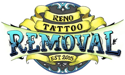 Up to 78% Off Tattoo Removal at Reno Tattoo Removal