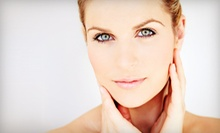 Two, Three, or Four Microdermabrasion Treatments at Ideal Glow (59% Off)