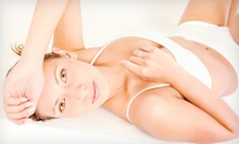 Laser Hair Removal at The Hollywood Body Laser Center (Up to 93% Off). Three Options Available.