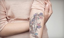 Laser Tattoo Removal for Area Up to 3, 6, or 12 Square Inches at Chic Esthetiq Med Spa & Laser Center (67% Off)