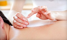 $39.99 for One Acupuncture Session with an Initial Consultation at Rebalance Healing Center ($90 Value)