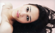 $75 for a Laser Skin-Rejuvenation Treatment at Golden Apple Skin Laser & Veins ($560 Value)