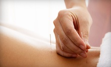 Consultation and Exam with One or Two Acupuncture Treatments and Massages at Dzogchen Healing Center (Up to 84% Off)