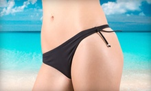 $179 for Six Alma Accent Laser Treatments at Elite Aesthetics ($1,800 Value)