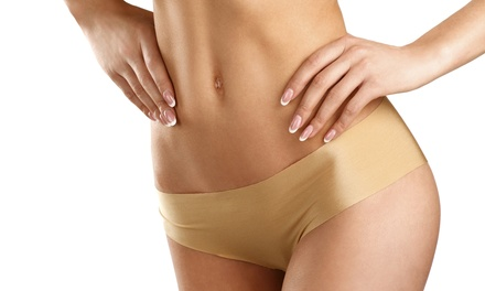 Three or Five Brazilian Waxes at Peelz On Wheelz (Up to 56% Off)