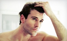 One or Eight Laser Hair-Restoration Treatments at Sure Hair International (Up to 82% Off)