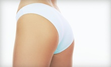 Consultation and One or Two i-Lipo Body-Contouring Treatments at Trimcare & Safe Laser Centers (Up to 60% Off)