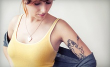 Tattoo Removal on a 3-, 6-, 9-, or 16-Square-Inch Area at Cosmetic Laser Solutions (Up to 56% Off)