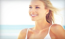 $99 for a Teeth-Whitening Consultation and Take-Home Kit at Gangwisch Dental Group ($360 Value)