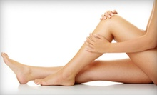 One or Two 20-Minute Sclerotherapy Treatments with Consultation at Total Vein Concepts in Chesapeake (Up to 72% Off)