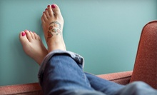Tattoo-Removal Session for Area of Up to 3, 5, or 8 Square Inches at Andover Electrology & Laser Center (Up to 69% Off)