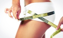 One or Two i-Lipo Laser Body-Contouring Treatments at Olan Comprehensive Healthcare Center (Up to 67% Off)