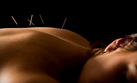 Acupuncture Treatments and Massage at Dow Chiropractic and Acupuncture (Up to 64% Off). Four Options Available.
