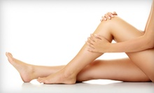Two or Four Sclerotherapy Spider-Vein Treatments at Universal Vein Clinics (Up to 90% Off)