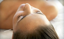 One or Two Medical Acupuncture Treatments at Broward Acupuncture and Holistic Medicine (Up to 78% Off)