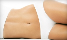 Two or Four Radio-Frequency Body-Sculpting and Skin-Tightening Treatments at Natural Beauty Clinique