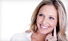 Teeth-Whitening Treatment with Optional Exam and X-rays at Center for Dental Implants of South Florida(Up to 85% Off)