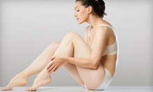 Two, Four, or Six Spider-Vein Treatments at Skin Matters (Up to 81% Off)