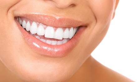 Clínica Lux — Odivelas: aparelho dentário metálico ou estético com 6 consultas de manutenção desde 79€