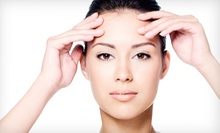One or Three LimeLight IPL Facials with Optional Laser Genesis Skin Treatment at Laser Beauty Works (Up to 70% Off)