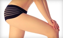 Four or Six VelaSmooth Cellulite-Reduction Treatments at Dreams Beauty Spa (Up to 73% Off)
