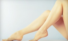 One or Two Spider-Vein Treatments at Vein Clinic PA (Up to 75% Off)