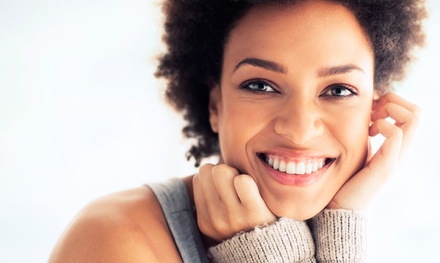 One, Two, or Three In-Office Teeth-Whitening Treatments at A Beaming Smile (70% Off)