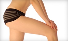 One or Three Laser Cellulite-Reduction Treatments at Transformations, A Skin Care Center (Up to 85% Off)