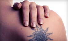 "Three Laser Tattoo-Removal Treatments for an Area Up to 4""x4"" or 6""x6"" at Prescription 2 Fitness (Up to 72% Off)"