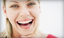 $125 for In-Office Teeth-Whitening Treatment at Smiles by Rosie Family Dentistry ($300 Value)