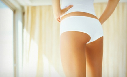 $149 for Three Accent Laser Cellulite-Reduction Treatments at Transformations Spa and Skin Care Center ($975 Value)