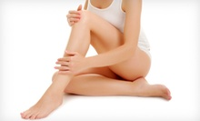 Laser Hair-Removal Treatments on a Small, Medium, Large, or Extra-Large Area at Beauty Bar Laser Clinic (Up to 92% Off)
