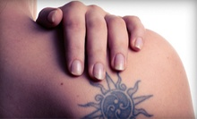 Three Laser Tattoo-Removal Sessions for Up to 2, 4, 6, or 8 Square Inches at Original Skin (Up to 61% Off)