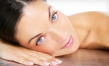 Four, Six, or Eight Microdermabrasion Treatments at VIP Aesthetics (Up to 85% Off)