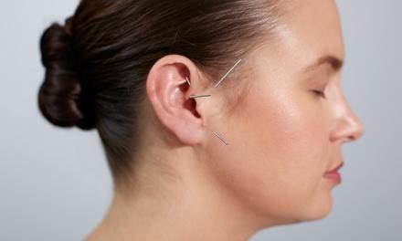Projecto Beleza Spa — Gondomar:6 ou 12 sessões de acupunctura auricular desde 39,90€