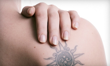 Three Laser Tattoo-Removal Sessions for an Area Up to 4, 6, or 10 Square Inches at Natural Beauty (Up to 87% Off)