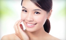 One or Three Microdermabrasion Treatments with Option for Chemical Peels at Blush Skin Care (Up to 73% Off)