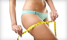 2, 6, or 10 Synergie and Microcurrent Cellulite-Reduction Treatments at Aesthetics For You (Up to 68% Off)