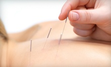 One, Three, or Six 60-Minute Acupuncture Treatments at The Well-Being Center (Up to 69% Off)