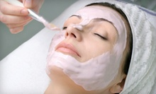 One or Two Diamond Microdermabrasions at A Flawless Face Boutique & MediSpa (Up to 54% Off)
