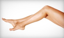 Six Laser Hair-Removal Treatments on a Small, Medium, Large, or Extra-Large Area at Sky Skin Center (Up to 88% Off)