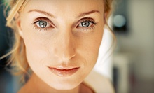 $1,199 for an Upper-Eyelid Lift on Both Eyes from James C. Sanderson, M.D., LLC ($3,800 Value)