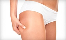 One or Two Non-invasive Fat Removal Ultrasonic-Cavitation Sessions from The Body Sculpt Xpress (78% Off)