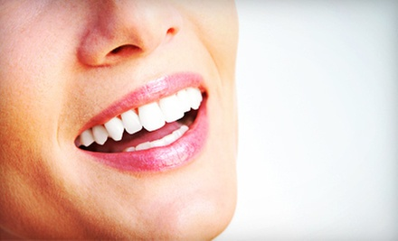 $139 for an In-Office Teeth-Whitening Treatment at Des Peres Dentistry ($550 Value)