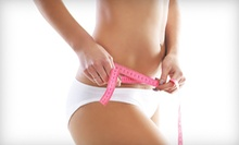 $89 for a Four-Week Weight-Loss Program with Weekly B12 Injections and Diet Plan at Juventis MedSpa ($260 Value)