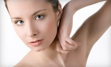 Six Laser Hair-Removal Sessions on a Small, Medium, or Large Area at Kendall Laser Spa (Up to 94% Off)