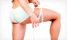 $599 for 10 Zerona Body-Sculpting Sessions at Cameo Surgical Center ($2,000 Value)