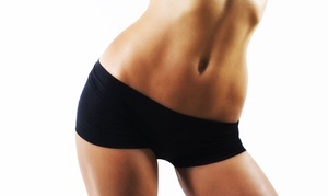 Two, Four, or Six Ultrasonic-Cavitation Treatments at Beverly Hills Cosmetic Centers (Up to 76% Off)